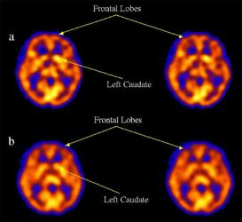 neurotheology