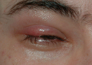 How to Get Rid of a Stye Fast | eBooks | Medical