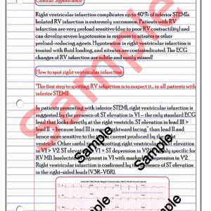 right ventricular wall mi study notes (pdf).