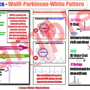 wpw explained easy study card (pdf) file