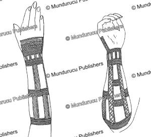 pohnpei female arm tattoo pattern, wilhelm joest, 1887