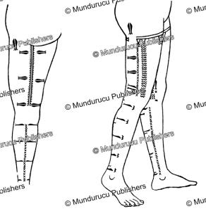 Yap female leg tattoo pattern, Wilhelm Mu¨ller, 1917 | Photos and Images | Travel