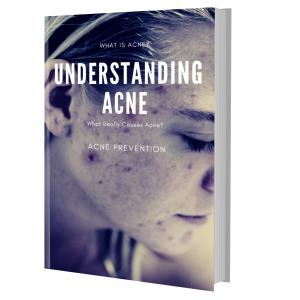 understanding acne:   causes, cures & myths e-book pdf plr