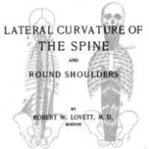 lateral curvature of the spine and round shoulders