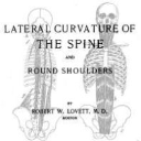 Lateral Curvature of The Spine and Round Shoulders | eBooks | Health