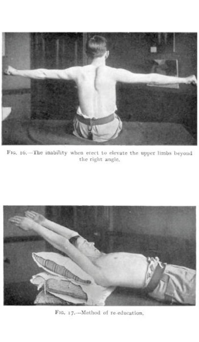 First Additional product image for - The Action of Muscles By William Colin Mackenzie
