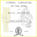 Lateral Curvature of the Spine and Pelvic Deviations | eBooks | Health