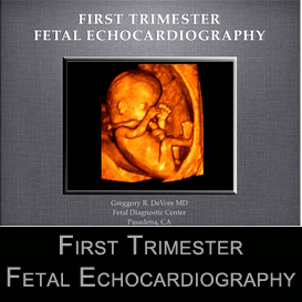 first trimester fetal echocardiography