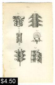 spinal vertebrae bones anatomy print